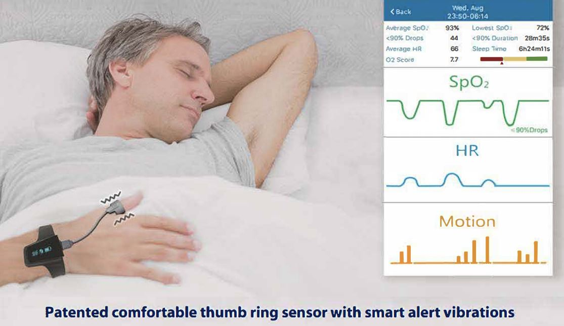 Patented comfortable thumb ring sensor with smart alert vibrations